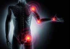 Akute Schmerzsymptome in Gelenken