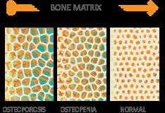 bone-matrix-web